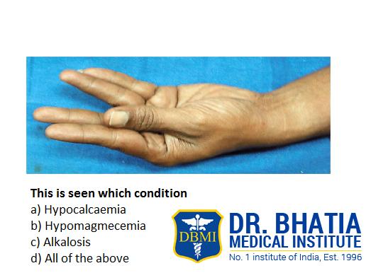 DBMI, best PG Medical Coaching Institute in India